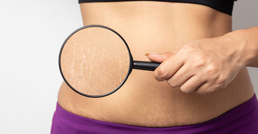Effective DIYs for Stretch Marks
