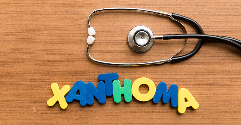 "A To Z of Health – ""X"" is to know about Xanthoma"