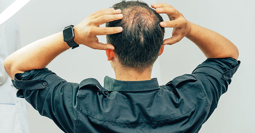 Men's Health – 5 Effective Guidelines for Male Pattern Baldness