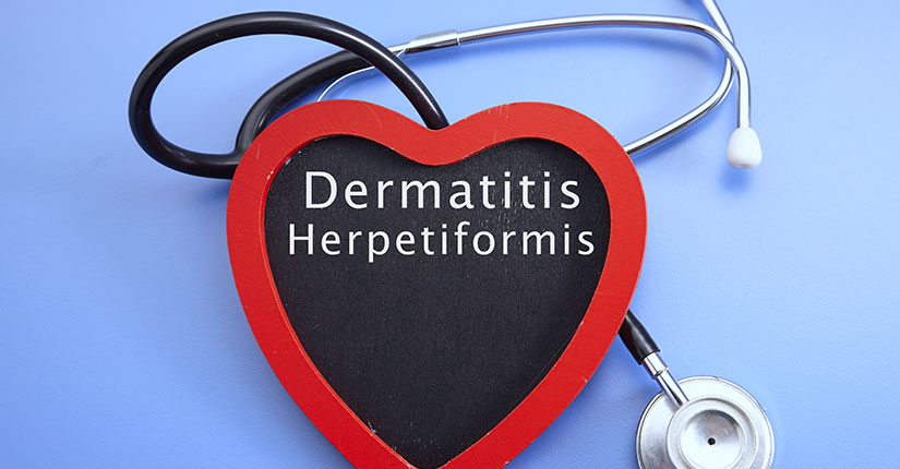 Here's What You Need to Know About Dermatitis Herpetiformis or Gluten Rash