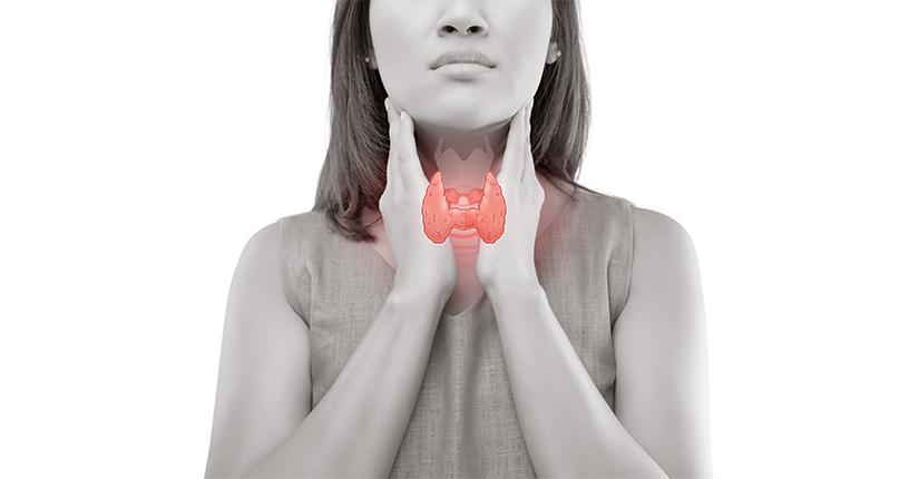 Hypothyroidism: Myths & Facts
