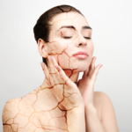 Tips to Treat Dry Skin in Winters