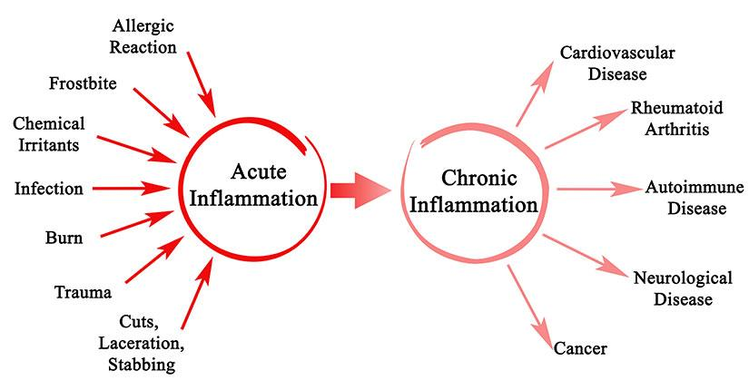 Chronic v/s Acute Inflammation – Know the Difference