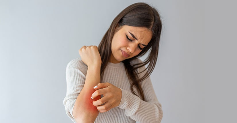 Eczema – 5 food Items to Eat and to Avoid