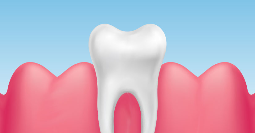 6 Ways to make your Gums Healthy