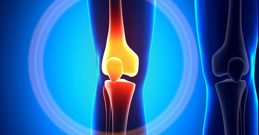 Does Weather Affect Arthritis Pain?