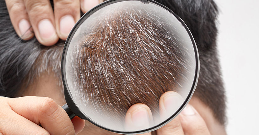 Feeding Smart from the Start to Prevent Premature Greying